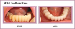 10 Unit Mandibular Bridge
