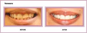 Veneers Gum Contouring